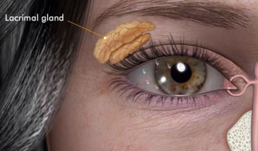 Lacrimal Gland - Ophthalmology Training