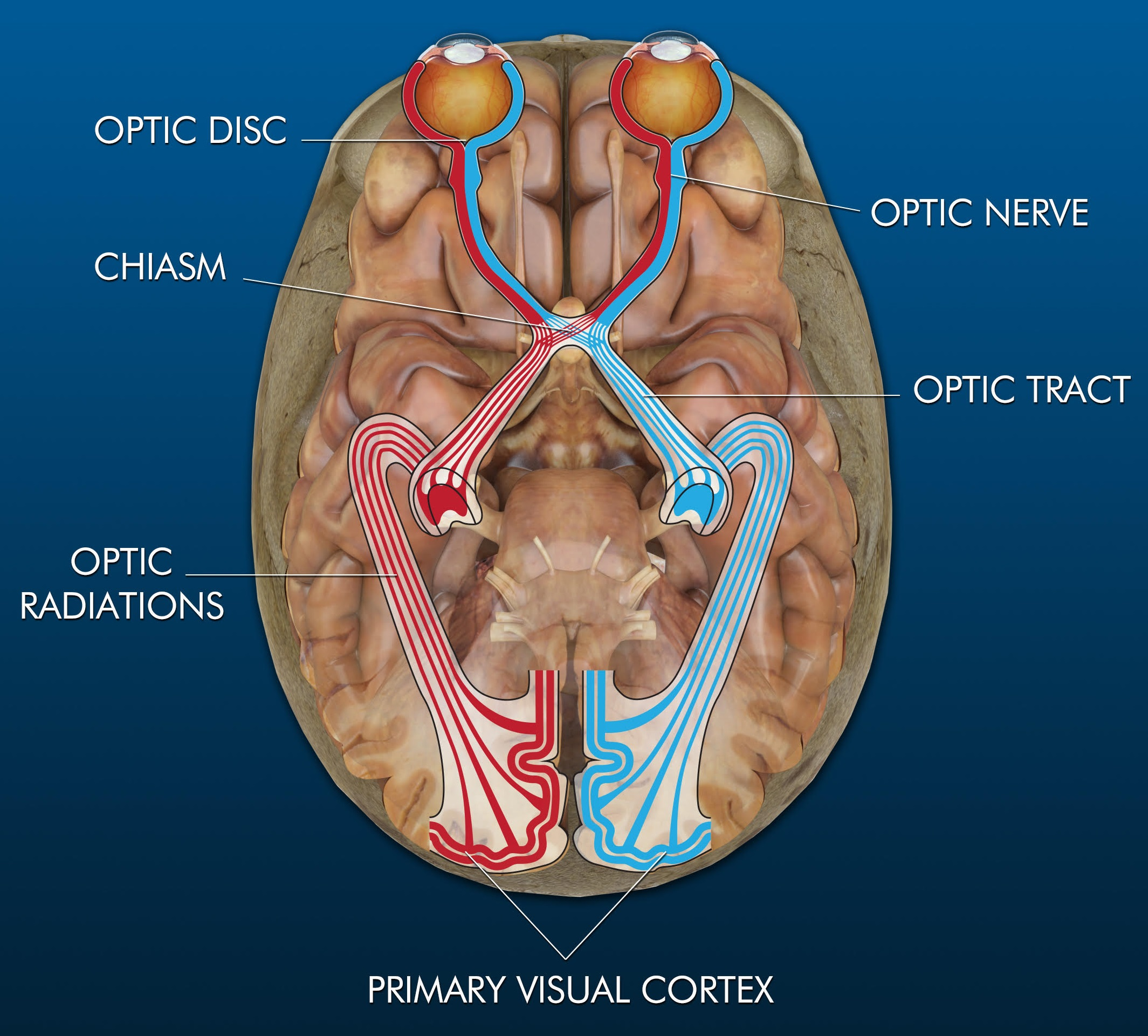 optic nerves and chiasm - ophthalmology training, Human Body